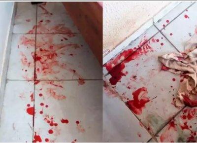 Sangue ficou espalhado por onde o cachorro passou (Foto: arquivo pessoal)
