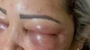 Vítima teve que ser internada no Hospital Regional de Ponta Porã - Reprodução/redes sociais